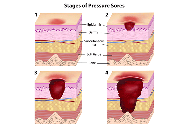 answers pressure ulcer Centers for medicare & medicaid services special open door forum  review answers to select commonly asked  pressure ulcer.